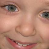 Profilasi oculare